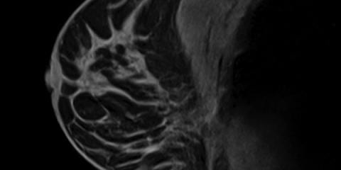 Breast MRI: A Radiologist's Newest Tool in the Detection of Breast Cancer